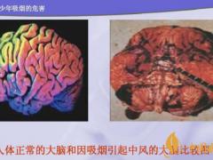 吸烟对身体有哪些风险 吸烟对大脑有什么风险(影响智力记忆力)